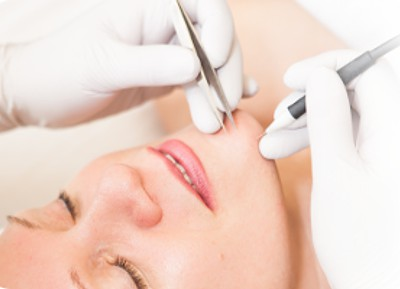 Permanent Hair Removal -  click here to learn more about Electrolysis