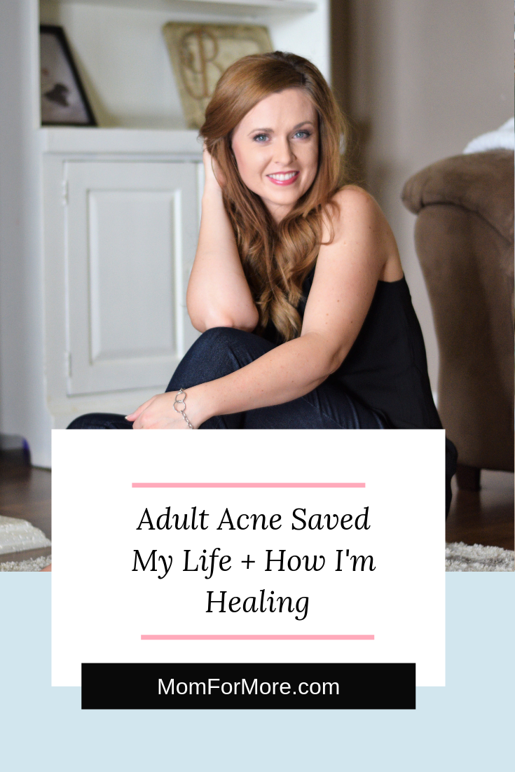 adult acne saved my life + how I'm healing