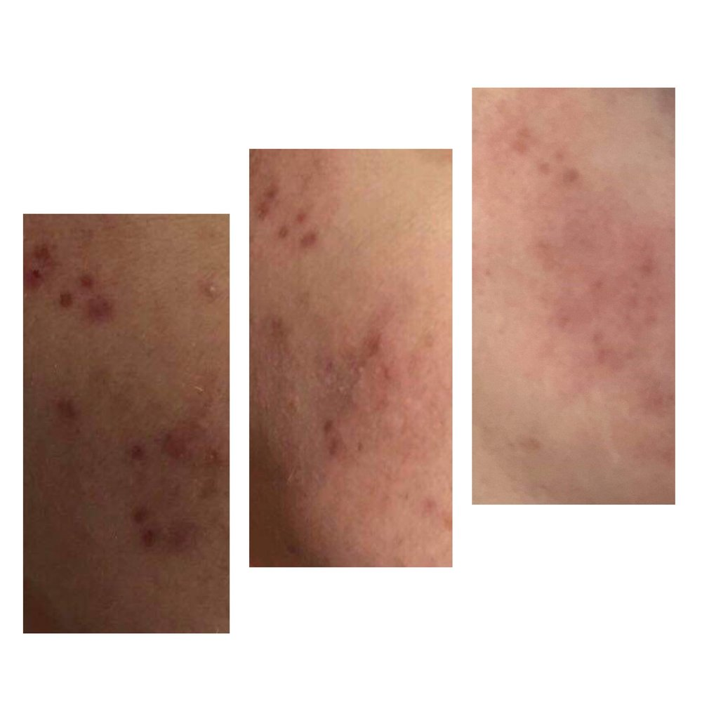 Three treatments over 3 months plus at home skincare  Products used; Alumier MD U.K.,