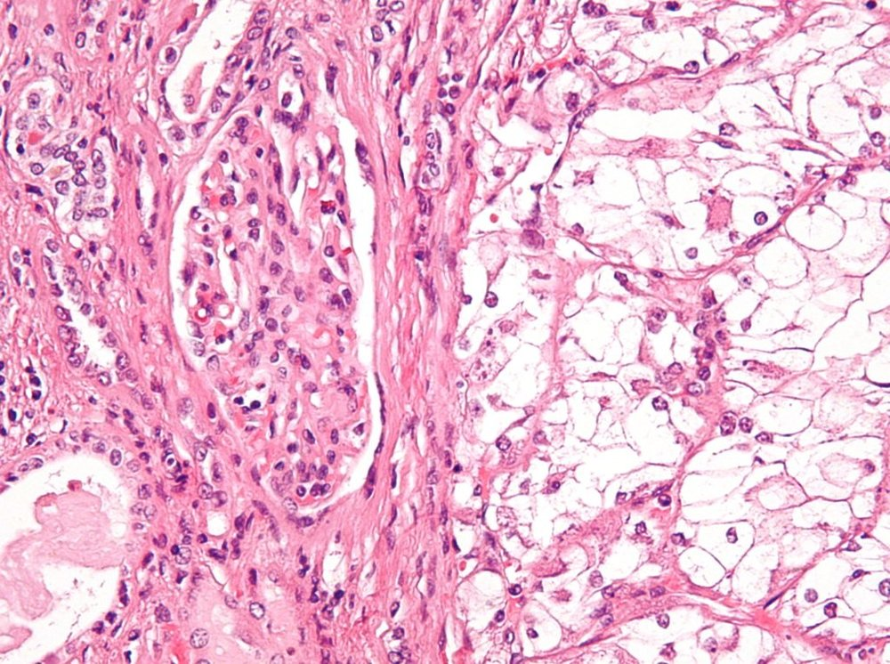 Clear_cell_renal_cell_carcinoma_high_mag_cropped-1024x764.jpg