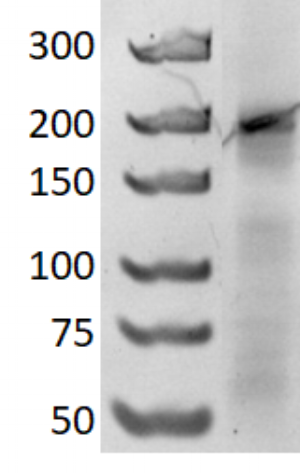Figure 7  6% native polyacrylamide gel run at 150V for 3 hours. DNA marker, GeneRuler Ultra Low Range DNA Ladder (left lane) and 2HO-RNA-2NN1 (right lane).