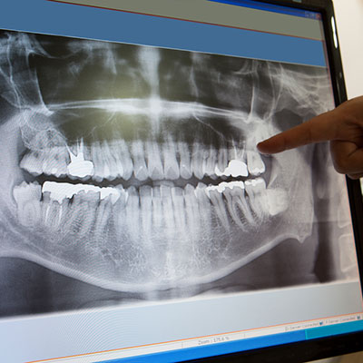 dental-xrays-square-2.jpg