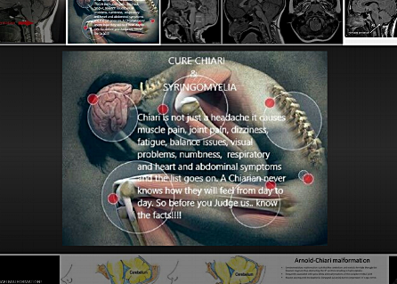 Chiari malformations are structural defects in the base of the skull and cerebellum, the part of the brain that controls balance. Normally the cerebellum and parts of the brain stem sit above an opening in the skull that allows the spinal cord to pass through it (called the foramen magnum). When part of the cerebellum extends below the foramen magnum and into the upper spinal canal, it is called a Chiari malformation (CM).  Chiari malformations may develop when part of the skull is smaller than normal or misshapen, which forces the cerebellum to be pushed down into the foramen magnum and spinal canal. This causes pressure on the cerebellum and brain stem that may affect functions controlled by these areas and block the flow of cerebrospinal fluid (CSF)—the clear liquid that surrounds and cushions the brain and spinal cord. The CSF also circulates nutrients and chemicals filtered from the blood and removes waste products from the brain.
