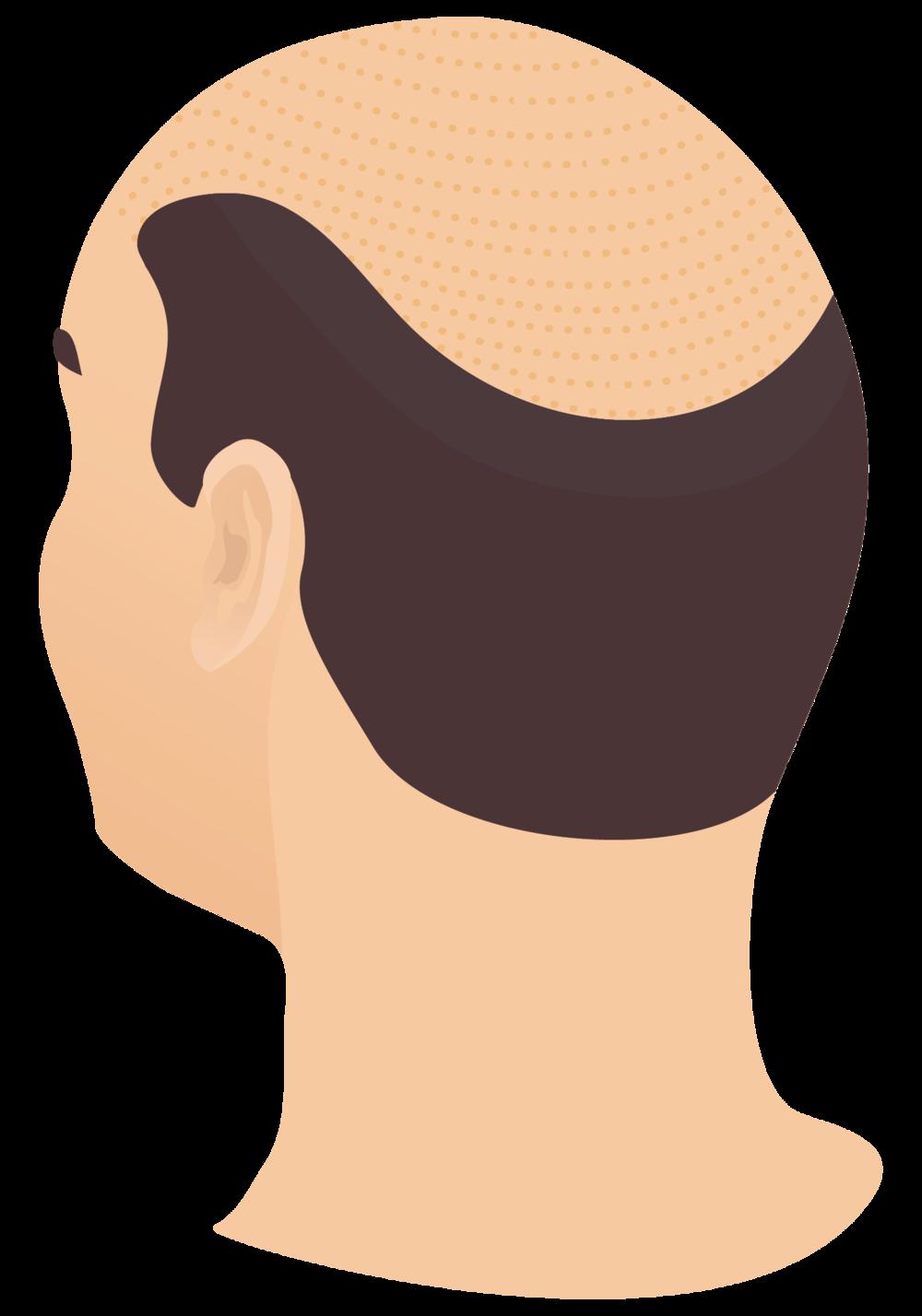 dr mark unger toronto hair transplantation