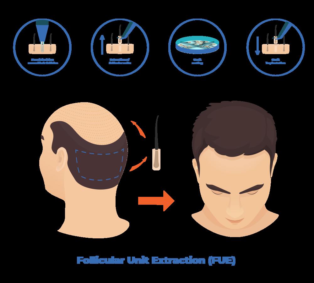 follicular-unit-extraction dr mark unger hair transplantation toronto
