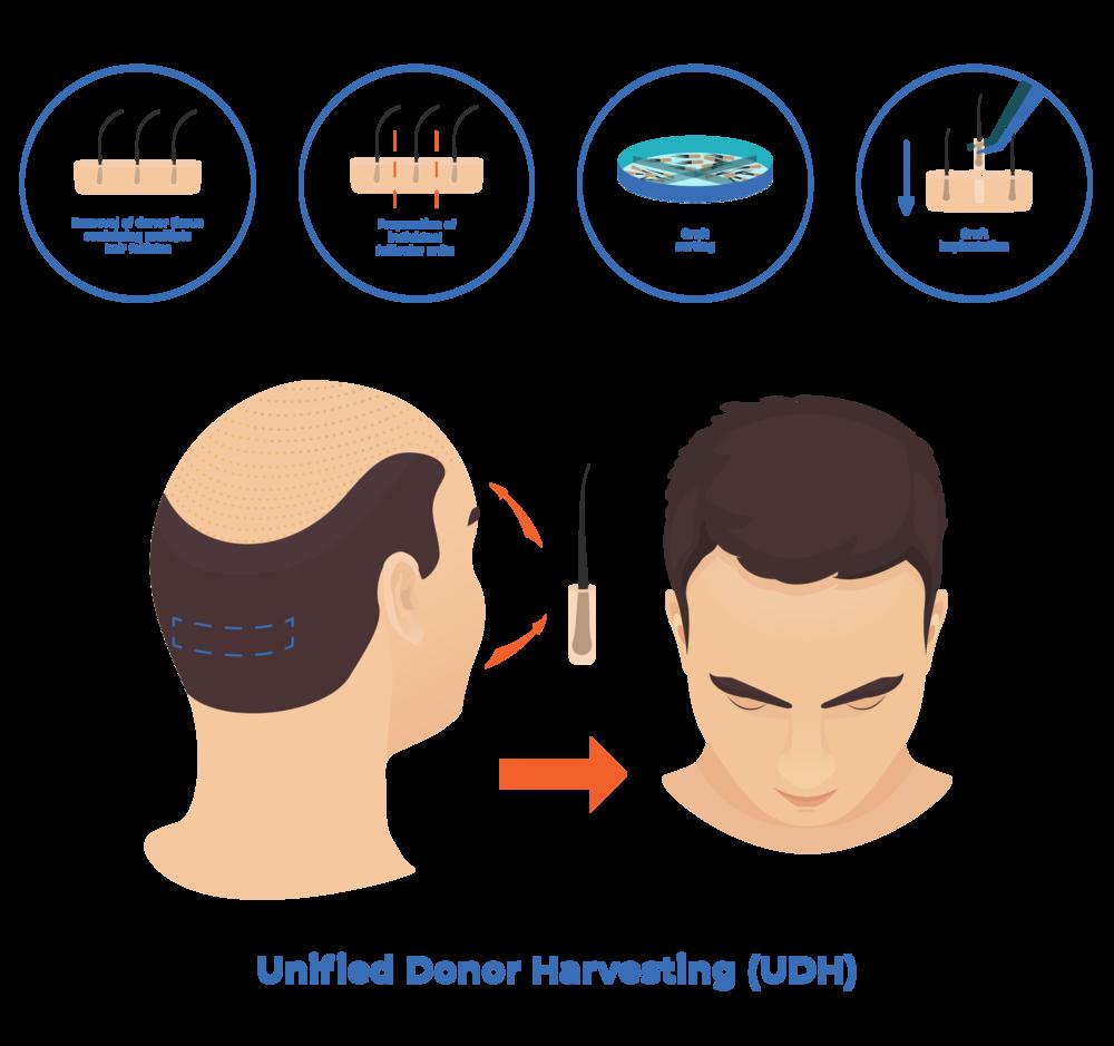 unified-donor-harvesting dr mark unger toronto hair transplantation