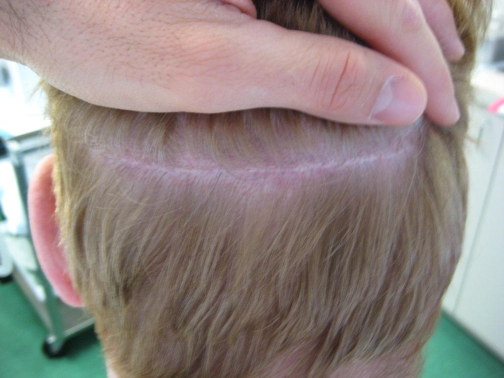 Donor scar area post-procedure
