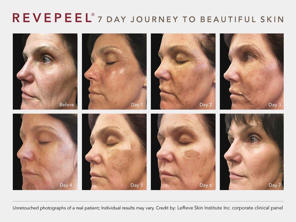 9-RevePeel-7 Days (1).jpg