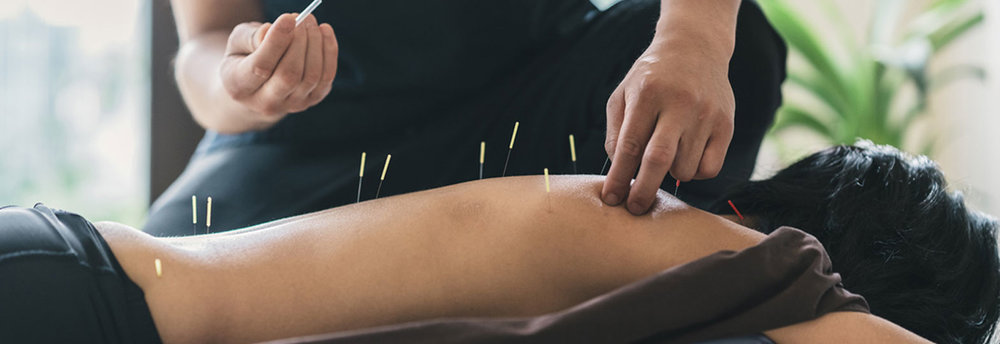 Best Acupuncture Services downtown Brampton