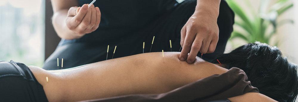 Best Acupuncture Services downtown Brampton