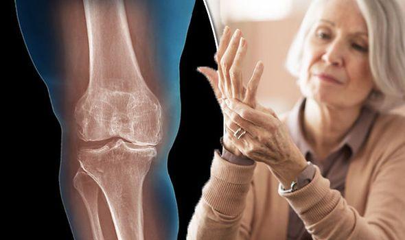 artritis.jpg