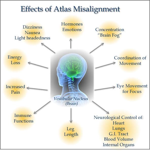 Atlas misalignment.JPG