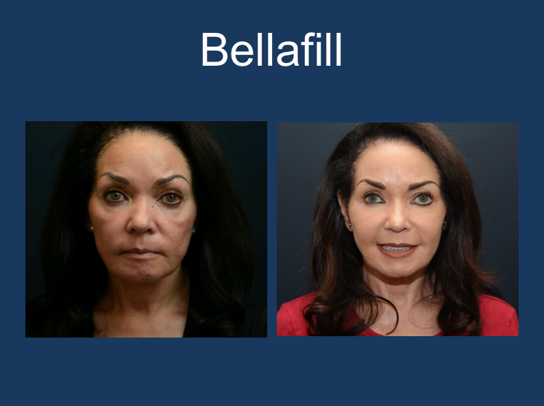Bellafill-2.png