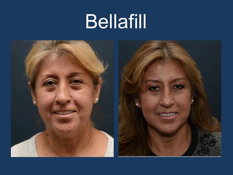 Bellafill-1.png