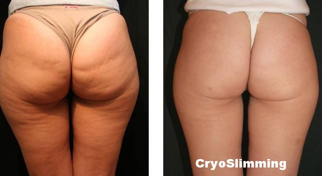 Cellulite BA womangluts3.JPG
