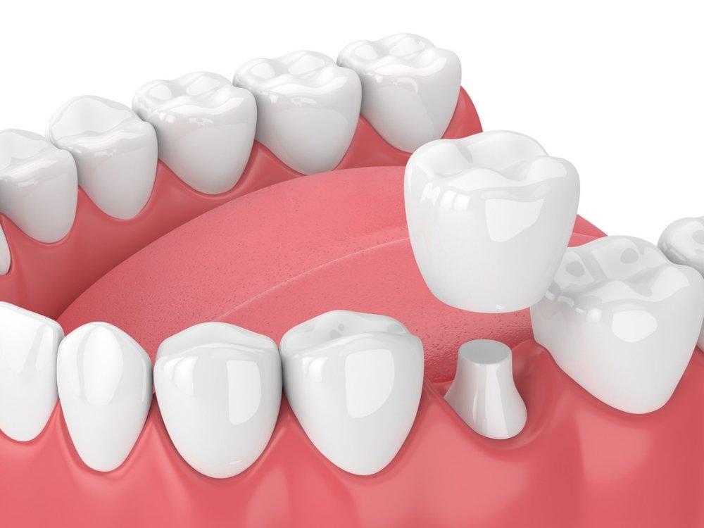 Altona Gate Dental Crown, Bridge Veneer