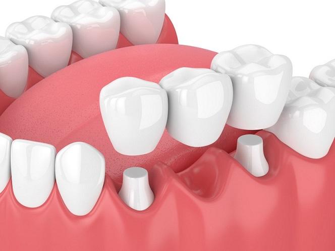 Altona Gate Dental Crown, Bridge, Veneer