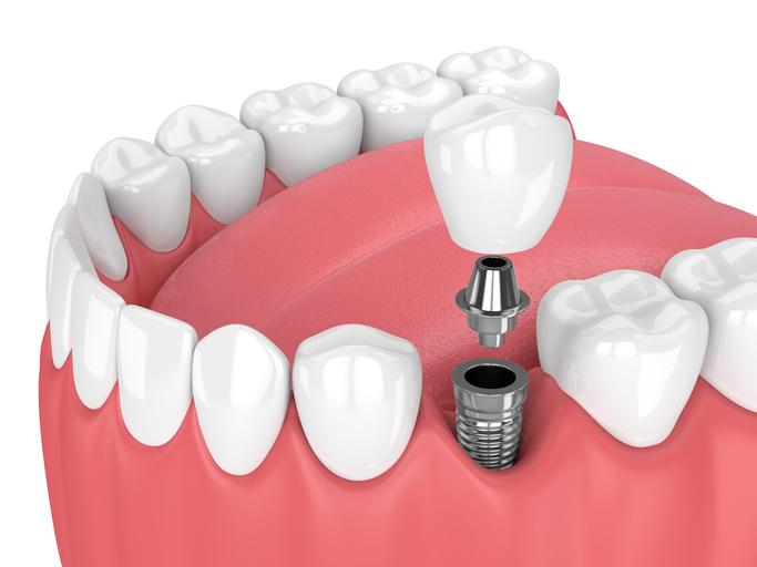 Altona Gate Dental Implant