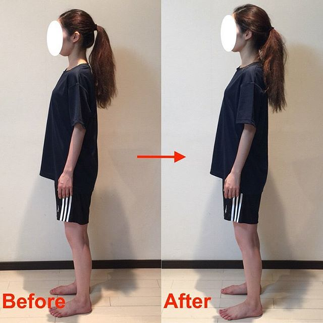 一見、Beforeの写真は姿勢良く見えるかもしれませんが、実際は過度に腰を反り、アゴを引いてバランスを取っています。  Afterの写真では首、肩、腰あたりがリラックスして、楽に姿勢を取れています。  楽で自然な姿勢になりたい方はご連絡ください!