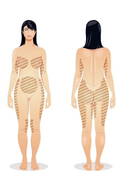 lingerie-vergeture-seins-Louisabracq.jpg