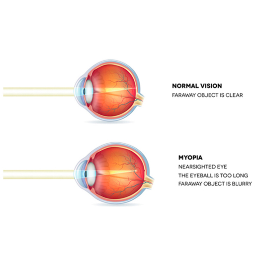 Image credit: Laser Eye Surgery Hub