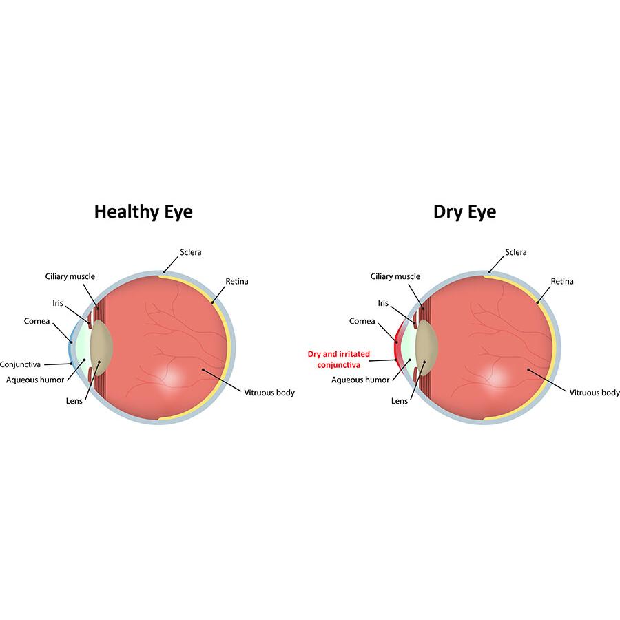 Image credit: Westlake Eye Specialists