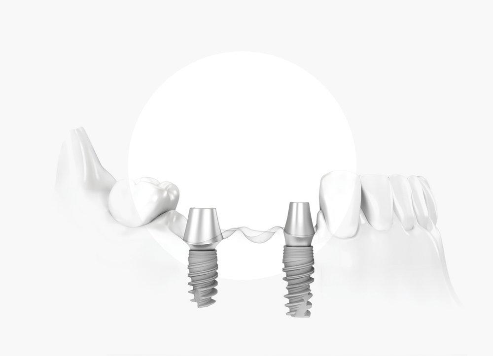 Implantología -