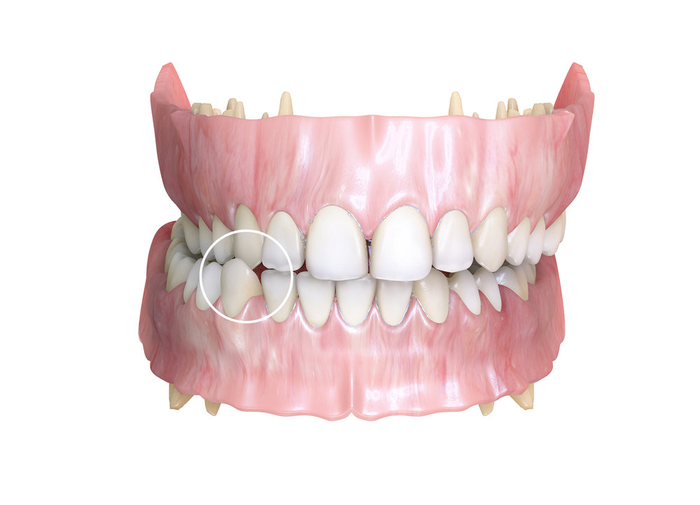Ortodoncia interceptiva - Identificamos de manera anticipada una maloclusión e interferimos su desarrollo evitando que se establezca o que lo haga de una forma menos severa.