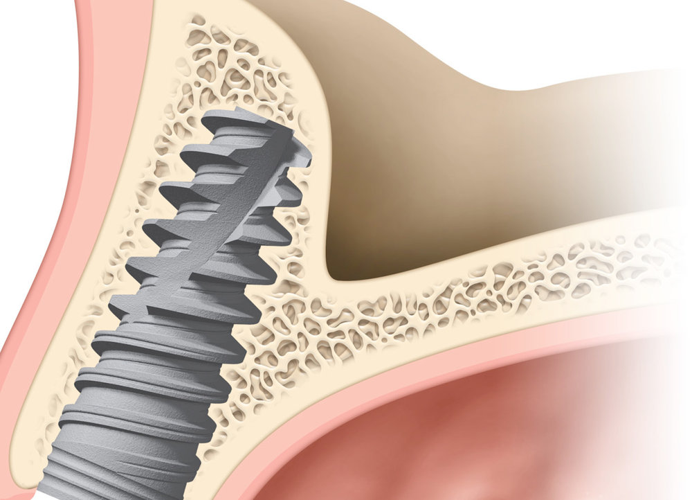 Injertos óseos - En casos puntuales, cuando la cantidad de hueso de la que disponemos es escasa, es necesario realizar técnicas especiales de aumento óseo. Además utilizamos el plasma rico en factores de crecimiento del propio paciente, lo que facilita la manipulación de los injertos y una más rápida cicatrización.