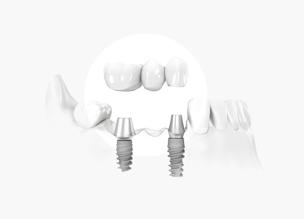 Implantes sin cirugía - Priorizamos la calidad, por eso nuestros implantes son Nobel Biocare, ofreciéndote así una garantía internacional (por si viajas al extranjero), y tranquilidad de por vida, ya que nos encargaremos de un seguimiento personalizado. Trabajamos con una técnica pionera en implantología dental más cómoda para el paciente y que abrevia el tratamiento; de ésta forma puedes ver en cuestión de horas (según el caso) cómo sustituimos tus dientes en peor estado por unos de calidad que mejorarán tu calidad de vida.