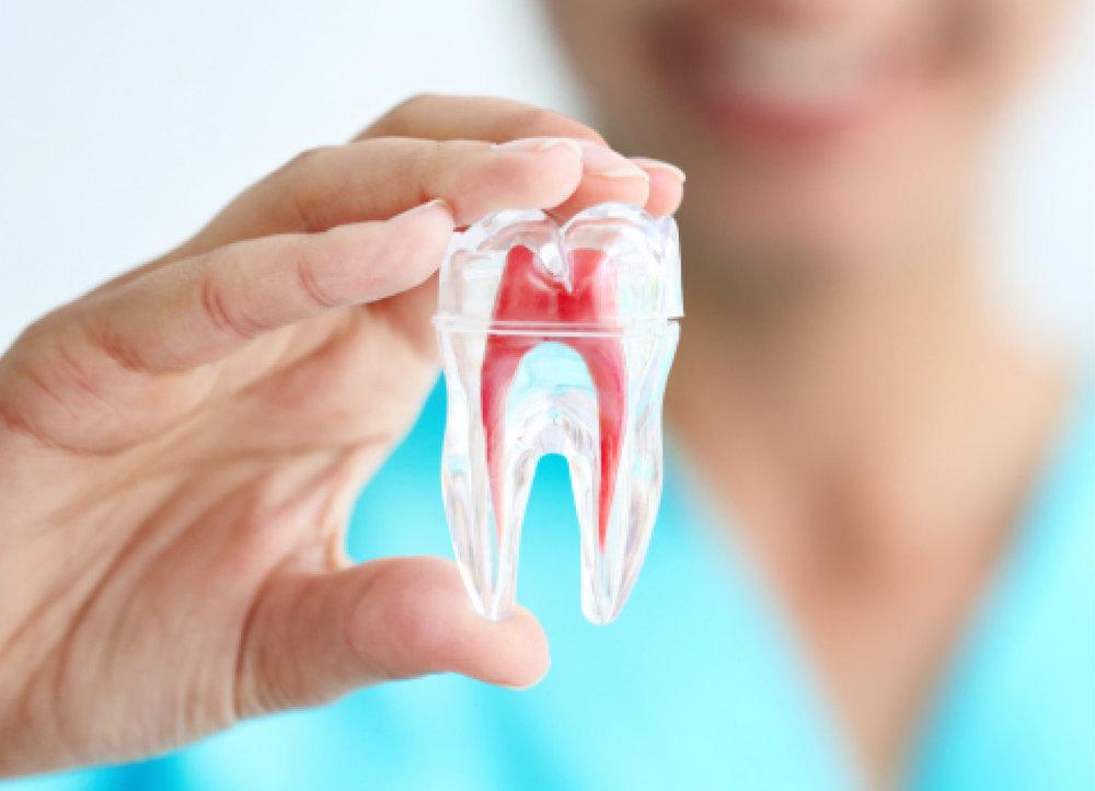 Endodoncia Rotatoria - Los nuevos motores y limas de endodoncia mejoran y facilitan la realización de estos tratamientos, además de disminuir su tiempo de realización, de manera que resulta también más cómodo para el paciente en comparación con las técnicas de endodoncia manual tradicionales.