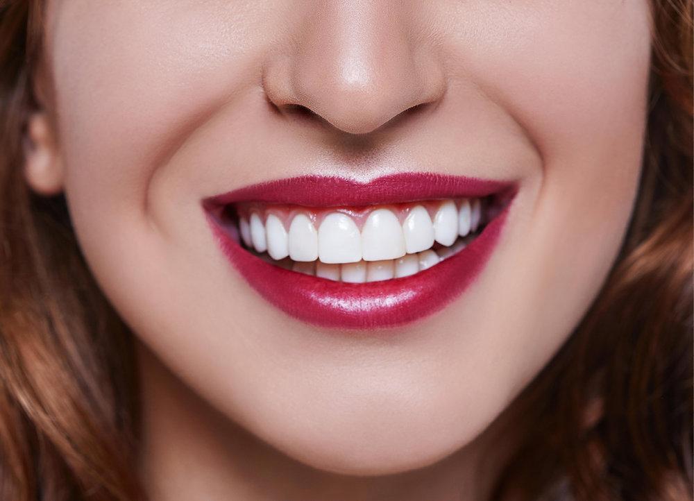 Carillas Composite - Otro tipo de carillas estéticas que podemos ofrecer a nuestros pacientes en el sector anterior son las realizadas en composite; se trata de unas carillas realizadas en la propia clínica en una sola sesión, de un resultado estético excepcional y que pueden ser modificadas en el futuro según el requerimiento de cada caso. Las carillas de cerámica están indicadas en casos de gran requerimiento estético en el sector anterior en los que no queremos o necesitamos tallar gran cantidad de diente del paciente.