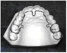 ALF Appliance - The basic Advanced Lightwire Functional (ALF) appliance is considered a removable/fixed appliance. While it utilizes closely adapted cribs, the appliance should be retained in the mouth with composite ledges to prevent the patient from removing the appliance. The light wire construction allows for the patient to maintain good oral hygiene during all phases of use. This is a versatile appliance that can be used in virtually any configuration you can visualize. It can be made with twin blocks, lip bumpers, single and twin cribs, and even with buccal tubes to be used in conjunction with brackets. The basic ALF is only the beginning.