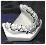 ALF LB - The ALF LB incorporates a lip bumper to relieve lower anterior crowding. True bony apposition occurs to create the space for crowded lower anteriors. The ALF LB works great to reopen the space in the cases of extracted lower primary canines. In both primary and mixed dentition, it is recommended that the two or three wire double crib be used on the primary molars.The three wire crib is used in cases where the primary molar may be lost during treatment. It is a simple matter to cut the crib from the lost molar and still maintain a full crib on the adjacent molar.