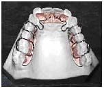 N-Sagittal - The N-Sagittal is used for division two cases and where it is desirable to reopen the spaces closed by first bicuspid extraction. The N-Sagittal is a light wire, easy to wear and adjust appliance. Caution should be used in opening the omega loops. They should never be adjusted more that one half to one millimeter. Over adjustment of the light wire omega loop can lead directly to breakage of these wires. Even with these seemingly modest adjustments, movement is very rapid and accurate.