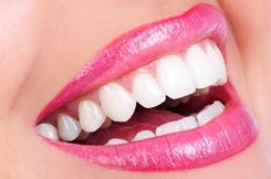 Teeth Whitening - Ask about our teeth whitening system