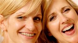 clear braces.jpg
