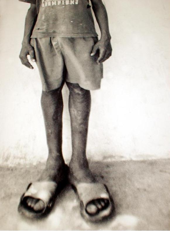 Big Feet by Brett Walker