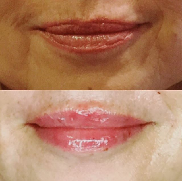 "Leslie gave this pretty pout some #Juvederm filler. Filling the vermillion border not only gives you the fullness you desire, but it also helps smooth out vertical lip lines— aka, ""smoker lines"". You know you wanna! 💋 ✨ ✨ ✨ ✨ #juvedermlips #volume #lips #plump #kiss #vermillionborder #botox #rvaspa #rvabeauty #esthetics #beauty #maintenance"