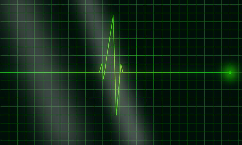 electrocardiogram-36732.png