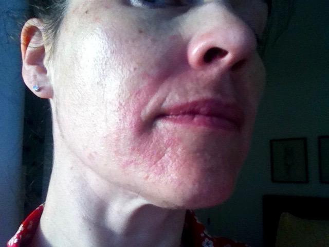 Skin Reaction (1).jpg