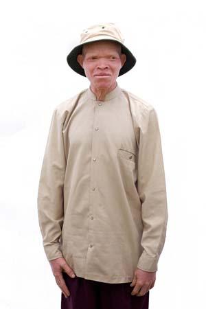 Albino_019.jpg