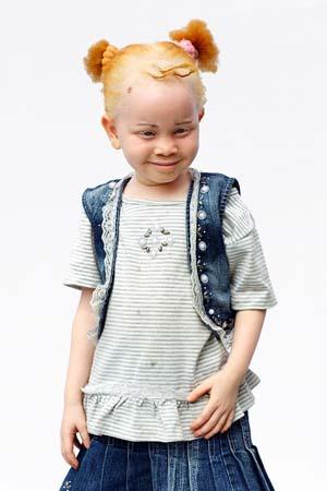 Albino_006.jpg