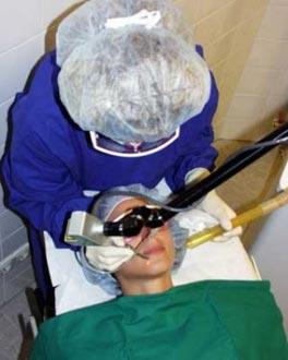 Co2-Laser-Behandlung