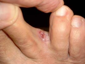 bösartiger Hauttumor im Zehenzwischenraumbereich