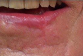 Krebsgeschwulst der Unterlippe... drei Monate nach Operation:Wiederhergestellte Unterlippenkontur