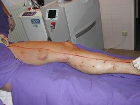 Zustand nach sog. Venenstripping der Vena saphena magna (große Rosenvene)