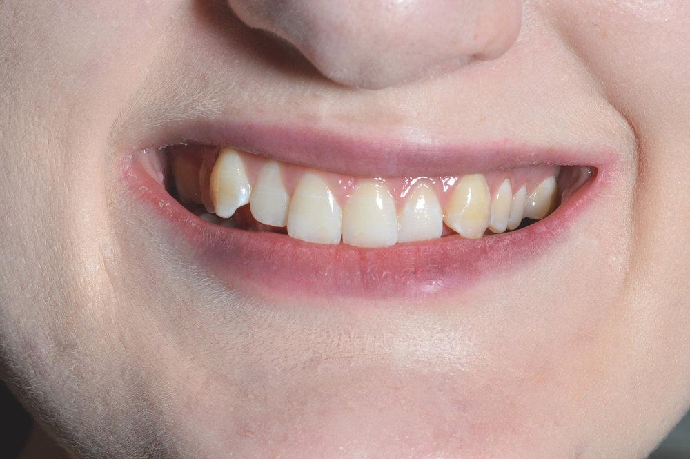 cherrybank dental spa