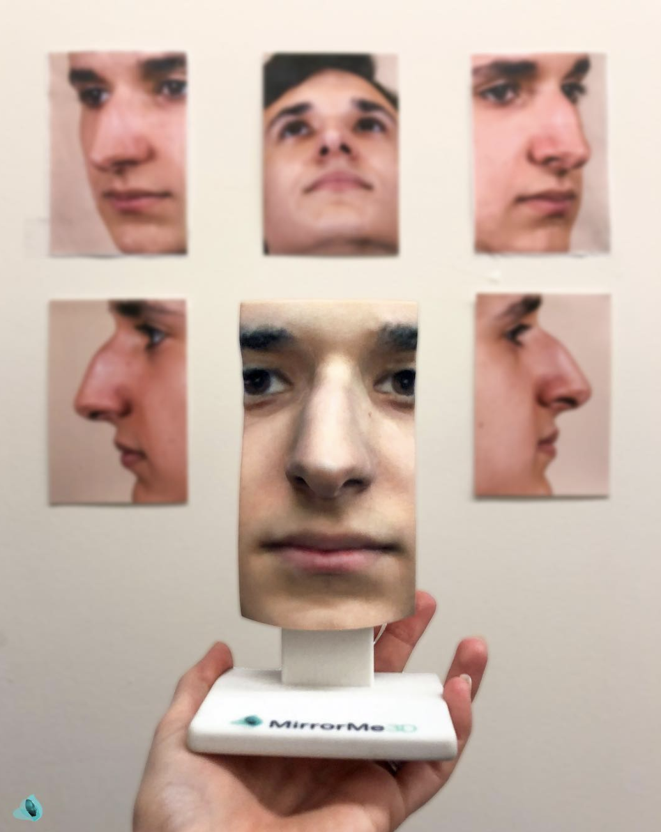 RHINOPLASTY MODELS: Featuring the key operating areas of and around the nose, rhinoplasty models help surgeons plan for surgery and simulate the procedure.