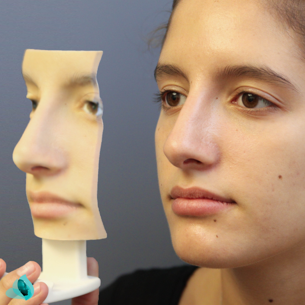 SIMULATION RHINOPLASTY MODEL